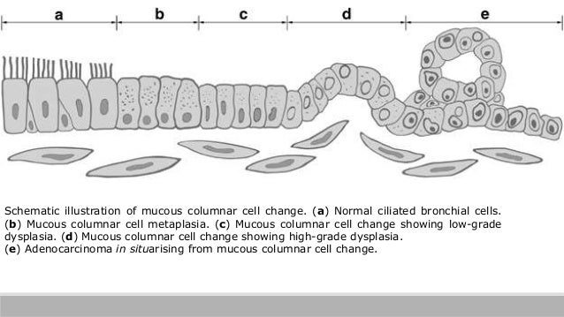 Schematic illustration of mucous columnar cell change. (a) Normal ciliated bronchial cells. (b) Mucous columnar cell metap...
