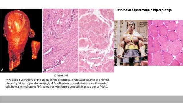 Fiziološka hipertrofija / hiperplazija
