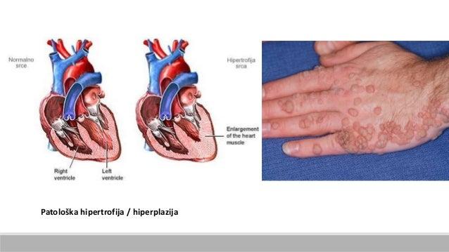 Patološka hipertrofija / hiperplazija