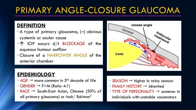 acute angle closure glaucoma treatment guidelines