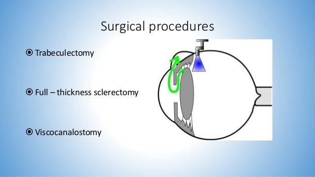 how to cure open angle glaucoma
