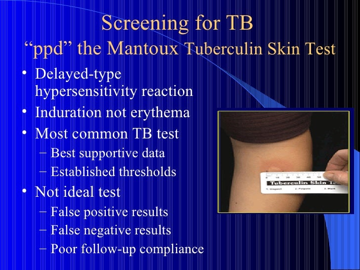 how to read a positive tb test