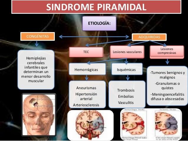 Síndrome de neurona motora superior e inferior