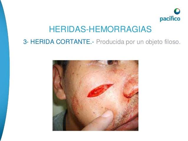 HERIDAS-HEMORRAGIAS  HERIDA PUNZO PENETRANTE.- Es la causada por un  instrumento agudo.  • TRATAMIENTO.-en la mayoría de l...