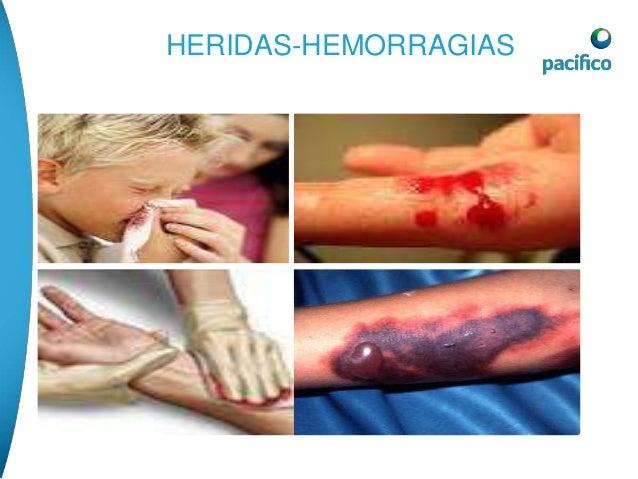 QUEMADURAS  SE CLASIFICAN EN :  • QUEMADURA DE PRIMER GRADO.- es muy  superficial, destruye solamente la epidermis y se  e...