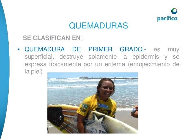 QUEMADURAS  • QUEMADURA DE SEGUNDO GRADO.- destruye la  epidermis y la dermis se expresa por la presencia de  flictenas (a...