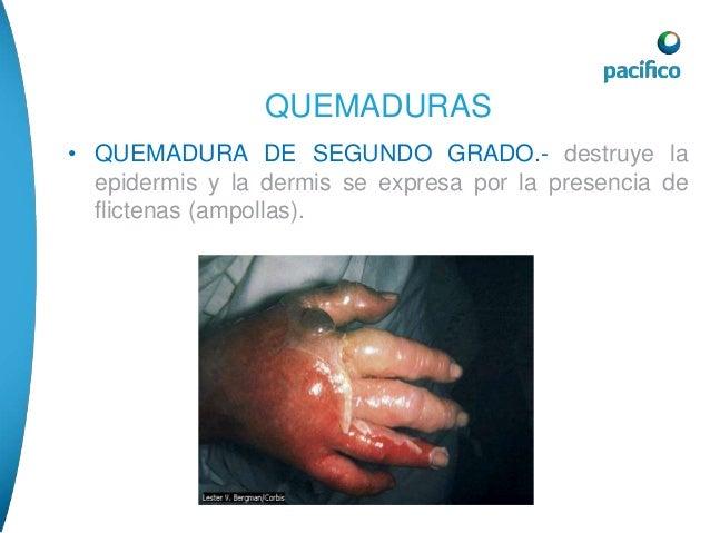 QUEMADURAS  • QUEMADURA DE TERCER GRADO.- destruyen todo el  espesor de la piel, la piel esta carbonizada, son  indoloras.
