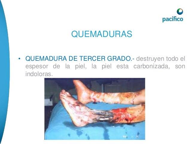 QUEMADURAS  • TRATAMIENTO.- refrescar inmediatamente la zona  afectada con abundante agua continua por  aproximadamente 20...