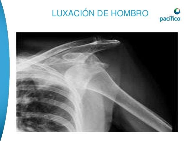 LUXACIÓN  • TRATAMIENTO DE EMERGENCIA:  1-evitar que la zona cargue peso.  2- aplicar frio en la zona afectada para evitar...