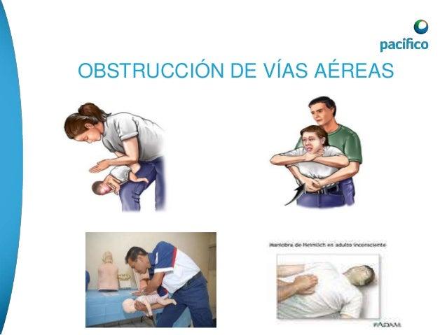 REANIMACIÓN CARDIO PULMONAR CEREBRAL  Solo se da a pacientes que no tiene pulso