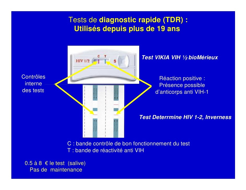 test hiv primo infection