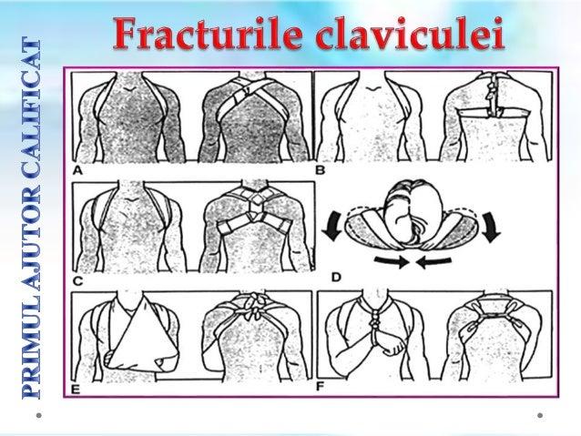 NU se va ȋncerca reducerea fracturii (repunerea ȋn poziție normalǎ a fragmentelor osoase) ȋn cazul fracturilor cu deplasar...