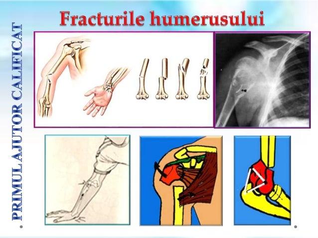 Fracturile gambei sunt foarte frecvente iar imobilizarea poate fi fǎcutǎ cu orice tip de atelǎ. Membrele inferioare pot fi...