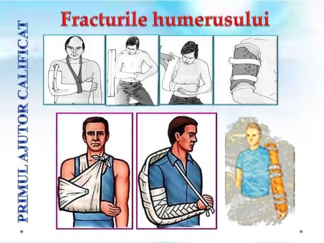 1) NU se va ȋncerca reducerea fracturii (repunerea ȋn poziție normalǎ a fragmentelor osoase) ȋn cazul fracturilor cu depla...