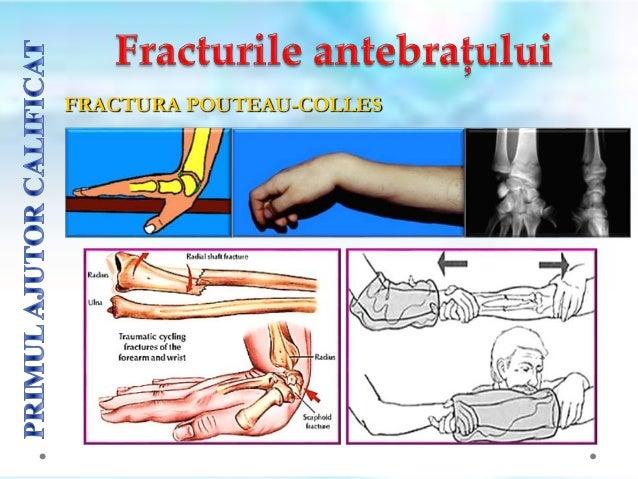 Imobilizarea fracturilor costale prin bandaje toracice circulare este contraindicată, pentru că reduce capacitatea de expa...