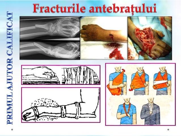 Astfel de leziuni se asociazǎ adesea cu contuzie pulmonarǎ, pneumotorax sau hemotorax .