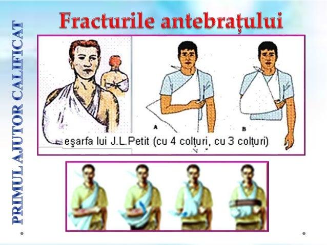 Fracturile de coloanǎ vertebralǎ se produc la persoanele ce cad de la ȋnǎlțime, la persoanele aruncate din vehicul, etc. C...