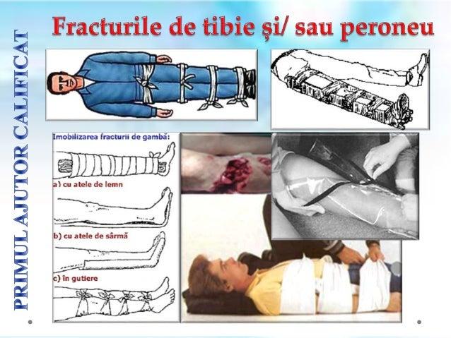 Primul ajutor constǎ ȋn imobilizarea provizorie (aplicarea unui bandaj strȃns și a unor comprese reci pe articulație ). Ac...