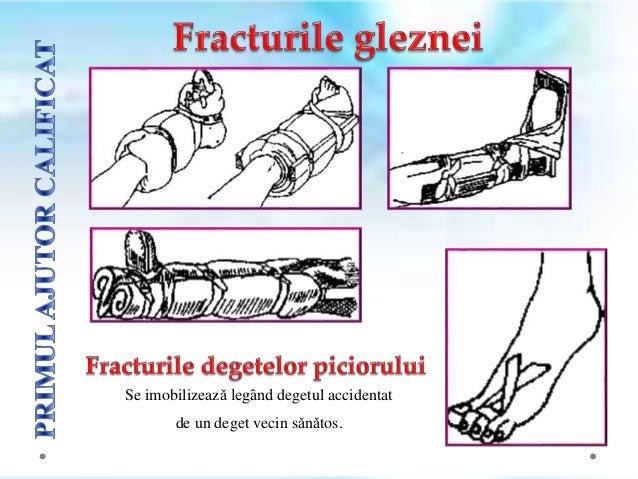  gradul I reprezintǎ ȋntindere a ligamentelor, prezentȃnd o ușoarǎ sensibilitate, edem și rigiditate. Apare durere la mer...