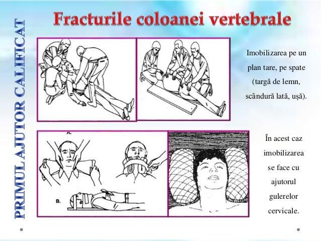 Hemostaza prin compresiunea manualǎ la membrul inferior poate fi realizatǎ la nivelul:  feței posterioare a articulației ...