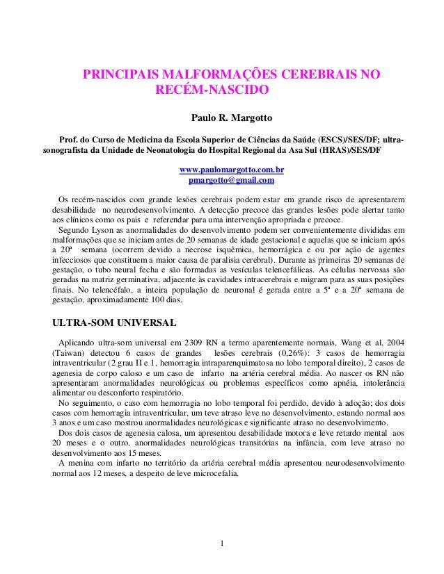 1 PRINCIPAIS MALFORMAÇÕES CEREBRAIS NO RECÉM-NASCIDO Paulo R. Margotto Prof. do Curso de Medicina da Escola Superior de Ci...