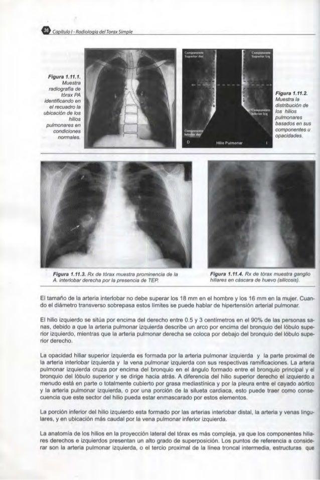 Principios basicos en la interpretacion de la radiologia del torax