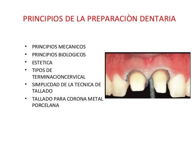 PRINCIPIOS DE LA PREPARACIÒN DENTARIA • PRINCIPIOS MECANICOS • PRINCIPIOS BIOLOGICOS • ESTETICA • TIPOS DE TERMINACIONCERV...