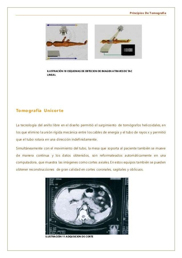 Principios De Tomografía Tomografía Unicorte La tecnología del anillo libre en el diseño permitió el surgimiento de tomógr...