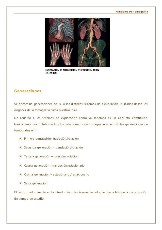 Principios De Tomografía Generaciones Se denomina generaciones de TC a los distintos sistemas de exploración, utilizados d...