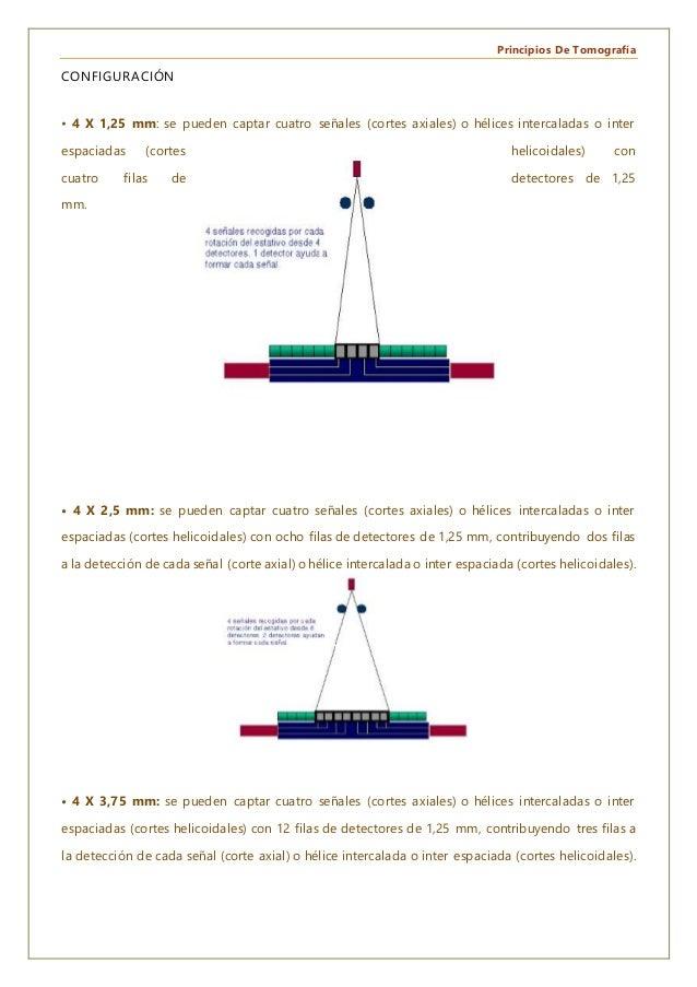 Principios De Tomografía CONFIGURACIÓN • 4 X 1,25 mm: se pueden captar cuatro señales (cortes axiales) o hélices intercala...