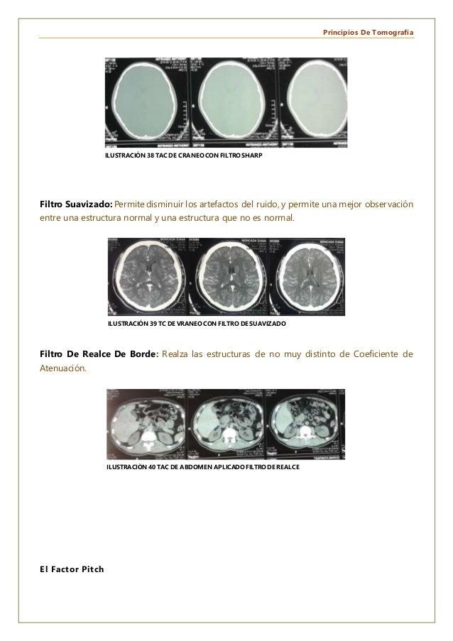 Principios De Tomografía Filtro Suavizado: Permite disminuir los artefactos del ruido, y permite una mejor observación ent...