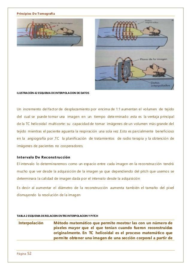 Principios De Tomografía Página 52 Un incremento del factor de desplazamiento por encima de 1:1 aumentan el volumen de tej...