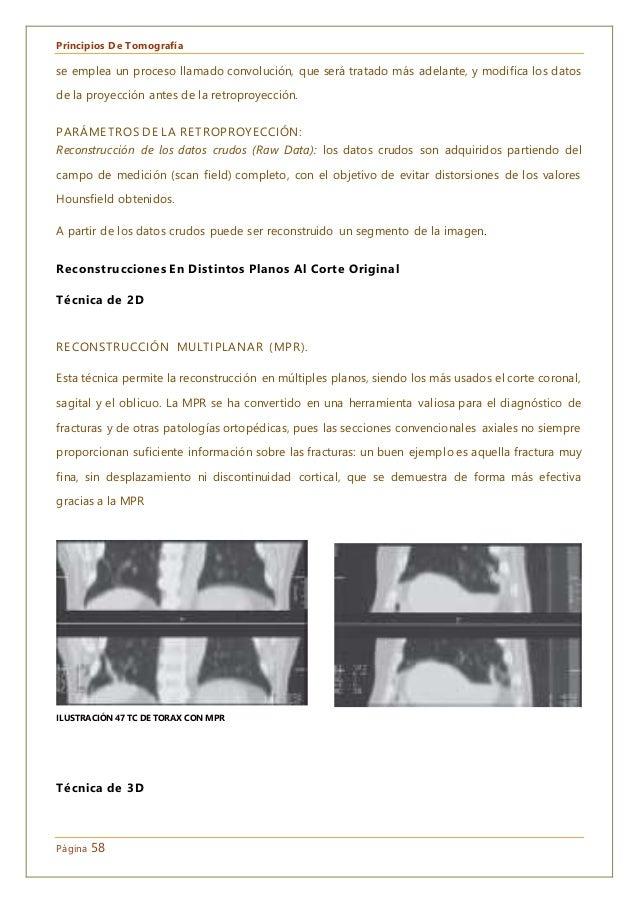 Principios De Tomografía Página 58 se emplea un proceso llamado convolución, que será tratado más adelante, y modifica los...