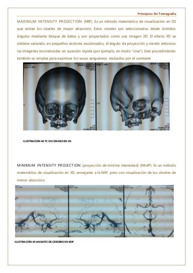 Principios De Tomografía MAXIMUM INTENSITY PROJECTION (MIP). Es un método matemático de visualización en 3D que extrae los...