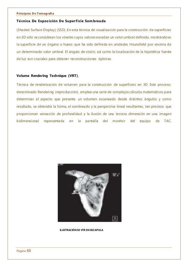 Principios De Tomografía Página 60 Técnica De Exposición De Superficie Sombreada (Shaded Surface Display) (SSD). En esta t...