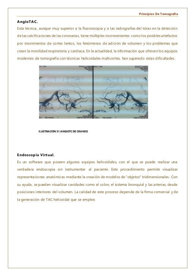 Principios De Tomografía AngioTAC. Esta técnica, aunque muy superior a la fluoroscopia y a las radiografías del tórax en l...