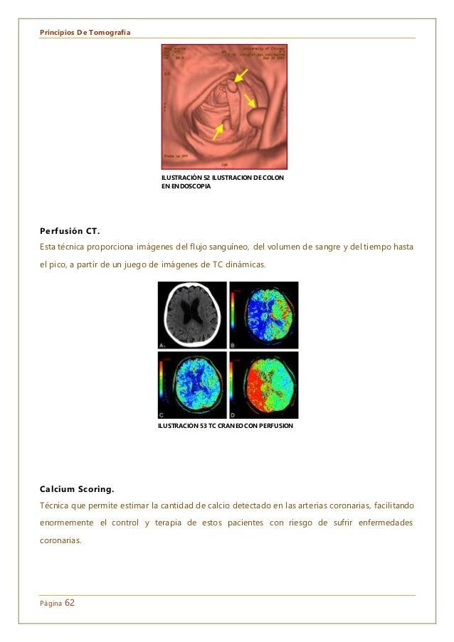 Principios De Tomografía Página 62 Perfusión CT. Esta técnica proporciona imágenes del flujo sanguíneo, del volumen de san...