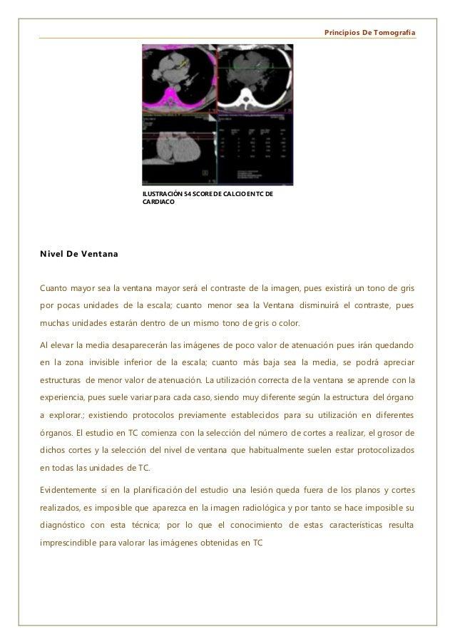 Principios De Tomografía Nivel De Ventana Cuanto mayor sea la ventana mayor será el contraste de la imagen, pues existirá ...