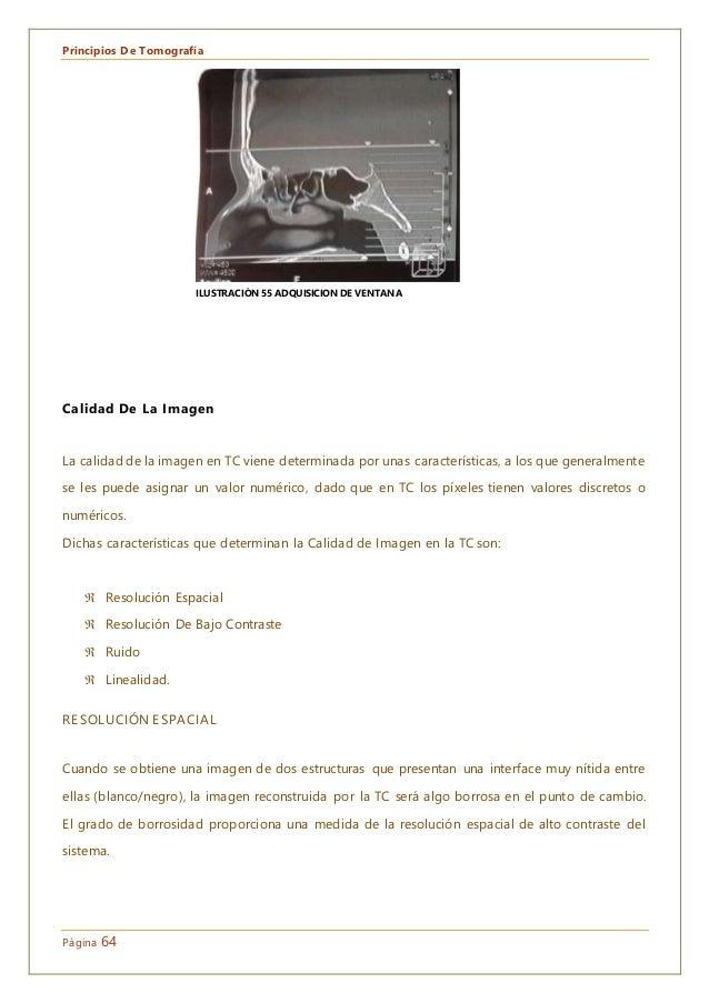 Principios De Tomografía Página 64 Calidad De La Imagen La calidad de la imagen en TC viene determinada por unas caracterí...