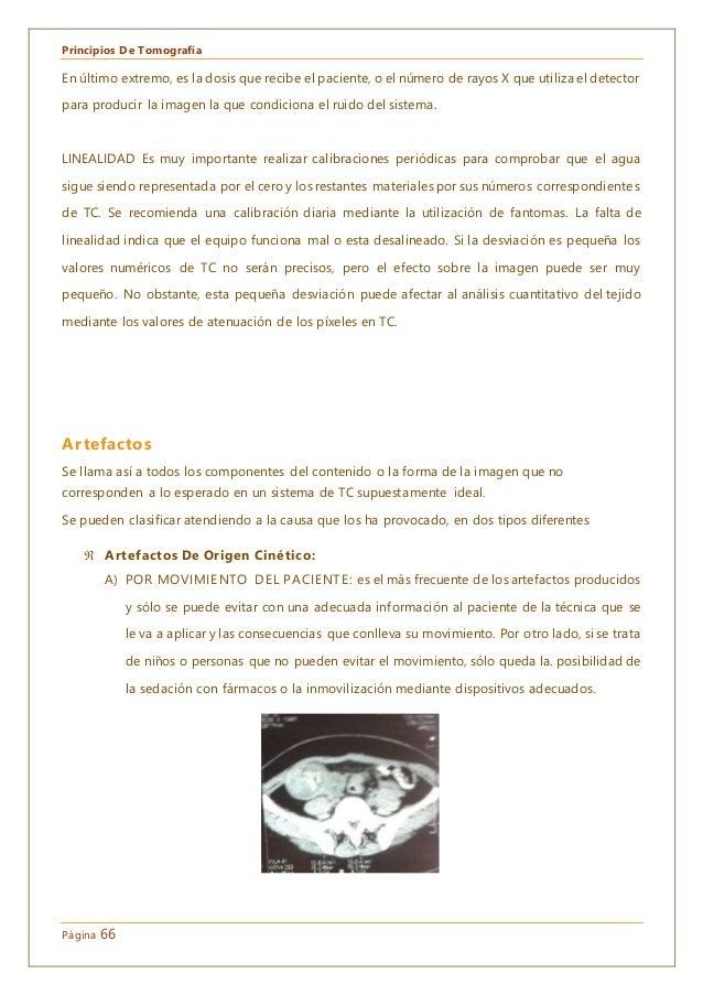 Principios De Tomografía Página 66 En último extremo, es la dosis que recibe el paciente, o el número de rayos X que utili...