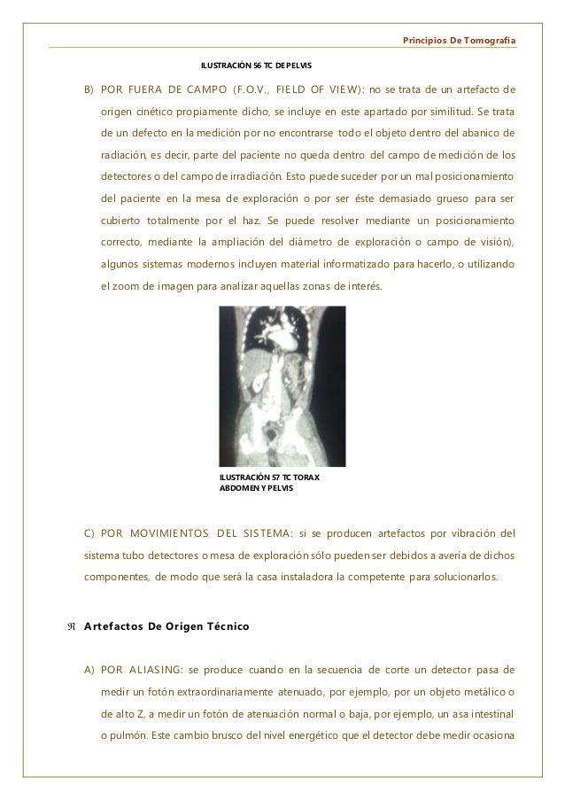 Principios De Tomografía B) POR FUERA DE CAMPO (F.O.V., FIELD OF VIEW): no se trata de un artefacto de origen cinético pro...