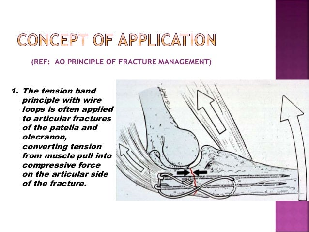 Pleasing Principle Of Tension Band Wiring N Its Application Wiring Digital Resources Nekoutcompassionincorg