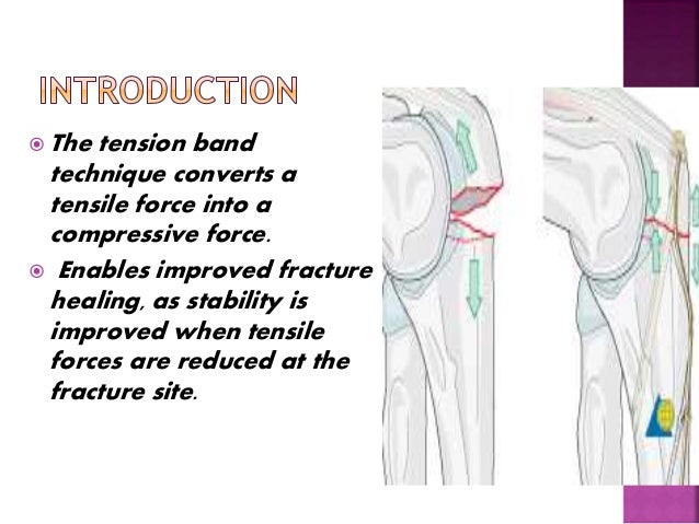 principle of tension band wiring n its application rh slideshare net tension band wiring patella tension band wiring patella