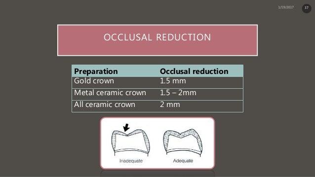 Principle Of Tooth Preparation