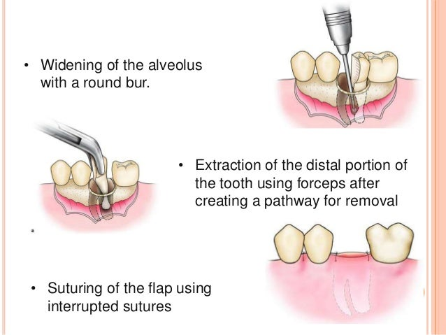 diagram of tooth extraction gallery how to guide and refrence