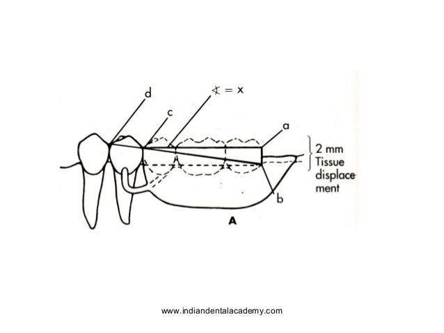 Principles of design.ppt1.ppt2 /orthodontic courses by