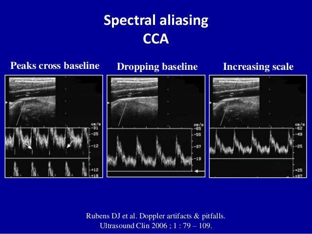 Principles Of Doppler Ultrasound