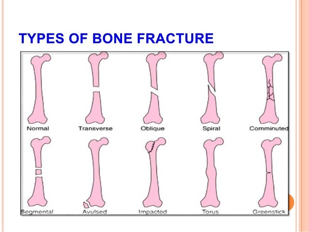 principles of fracture management saseendar, Human Body