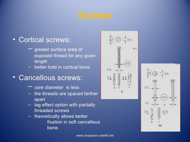 Principles Of Lag Screw + Platting