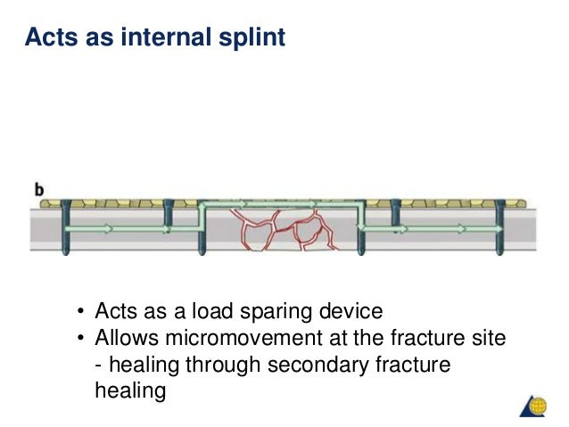 the principles of plating Principles of plating - free download as powerpoint presentation (ppt), pdf file (pdf), text file (txt) or view presentation slides online basic idea about fracture and methods of management.